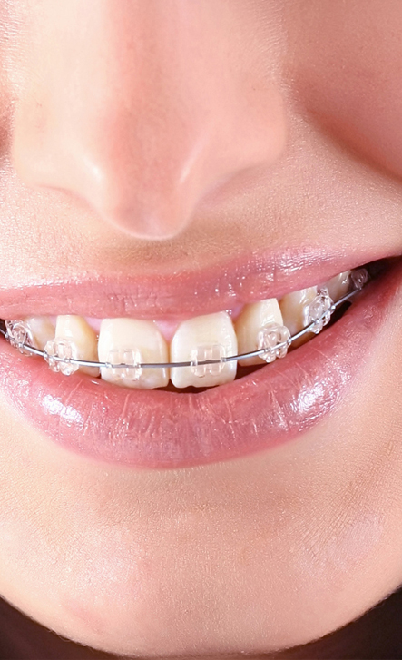 Ortodonzia sicilia