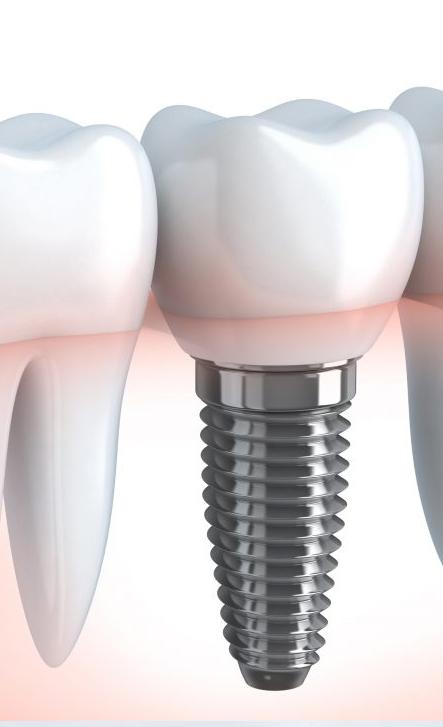 Riabilitazione orale